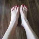 13日朝の足(骨が見えるようになった)